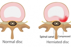 Things you should know about modern herniated disc treatments