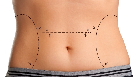 Common surgeries people get to enhance their looks